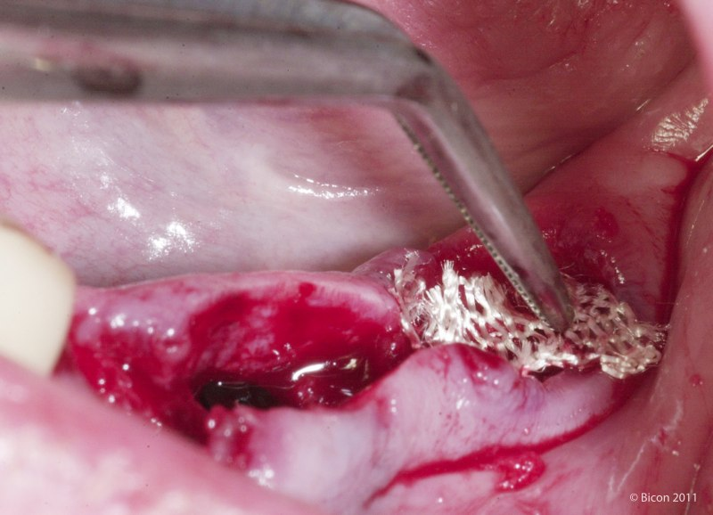 What Does Blood Clot After Tooth Extraction Look Like